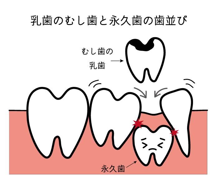 乳歯のむし歯と永久歯の歯並び