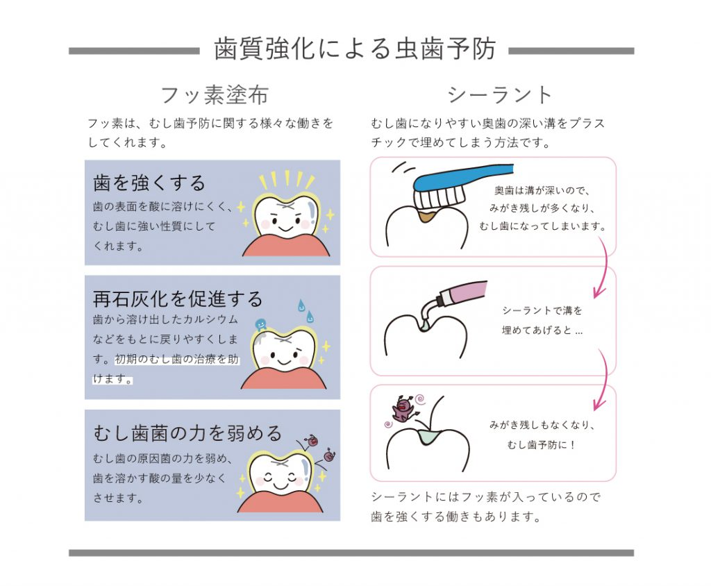 歯質強化による虫歯予防