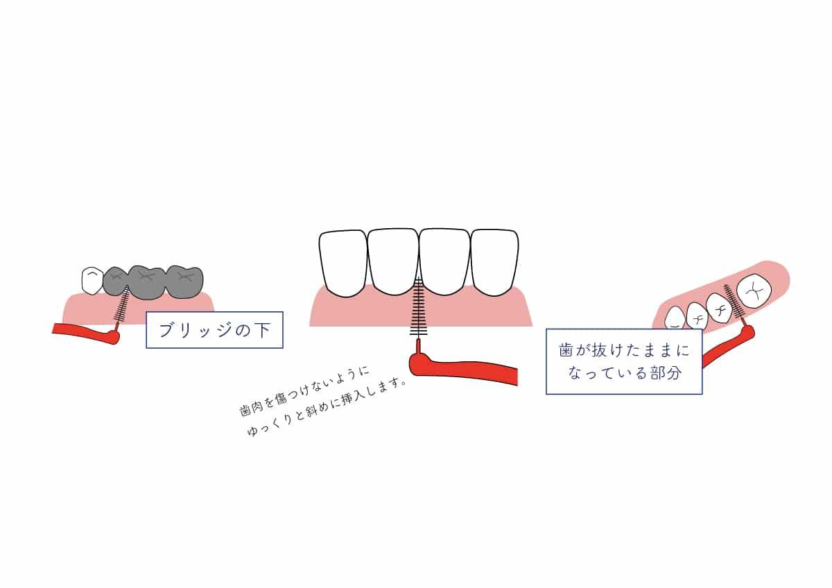 御笠川デンタルクリニック ヒカリの歯間ブラシ