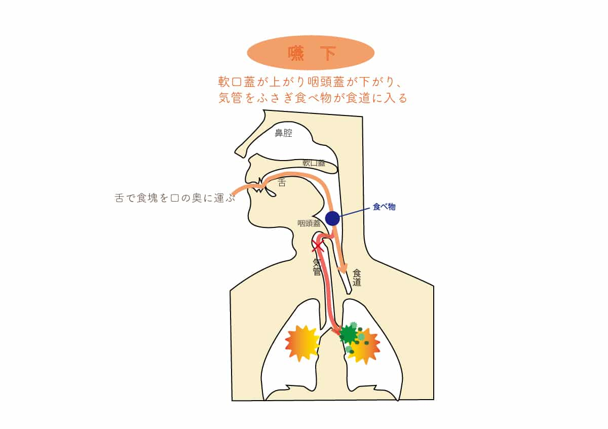 医療法人ゼロMT 御笠川デンタルクリニック ヒカリの訪問診療コラム